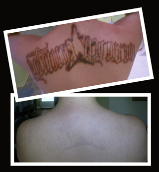 Tattoo removal cleanslate la for Clean slate tattoo removal